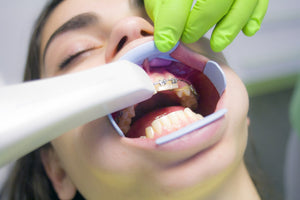 Teeth Sensitive to Cold: Causes and Remedies
