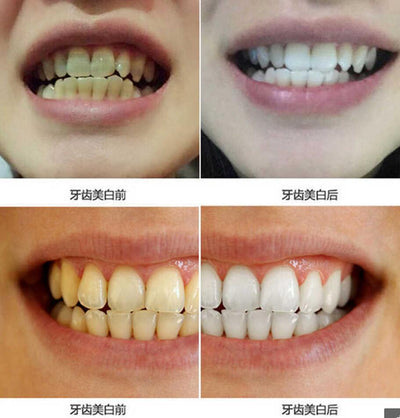 Teeth Care Tooth Cleaning Whitening