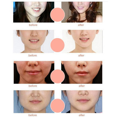 Slimming Eliminate Edema Lifting Firming Thin Face Care Tool