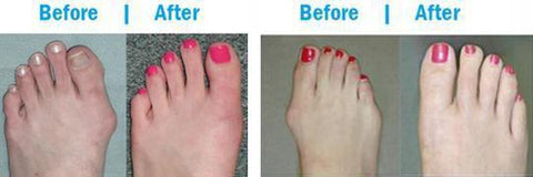 e8f45815 Podiatrist-recommended for bunion relief, NO SURGERY REQUIRED!