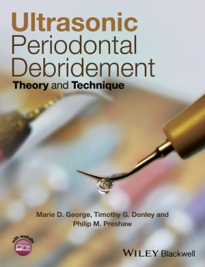 Ultrasonic Periodontal Debridement - Theory and Technique