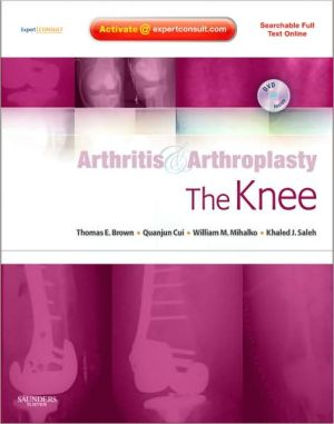 Arthritis and Arthroplasty: The Knee: Expert Consult: Online, Print and DVD **