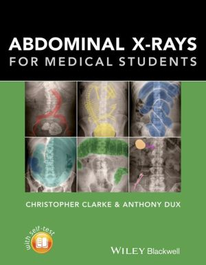 Abdominal X-rays for Medical Students