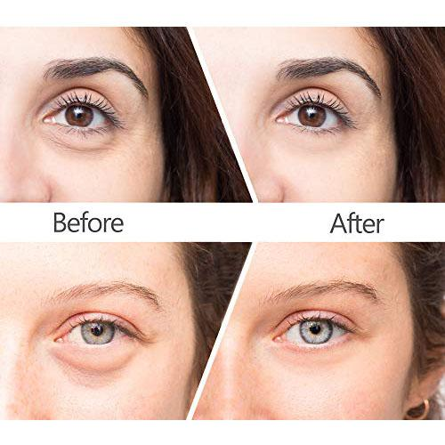 Magic Eye Cream-58 seconds to remove eye bags / dark circles / eye wrinkles