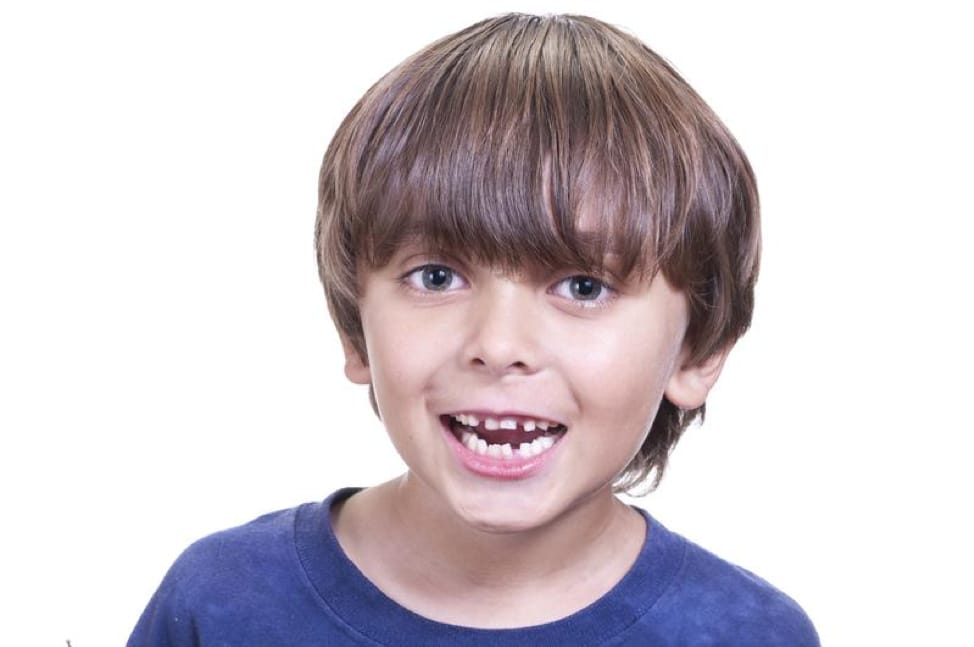 Do Your Children Have Crooked Teeth? You Have 4 Options