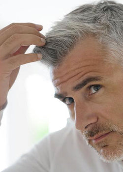 5 Indications You're Going Bald