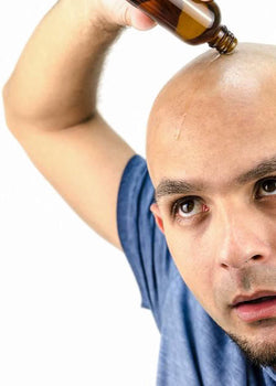 Dangers of Hair Loss Treatments