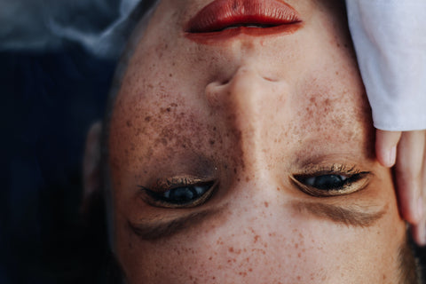 Close up of a woman's face with freckles and melasma