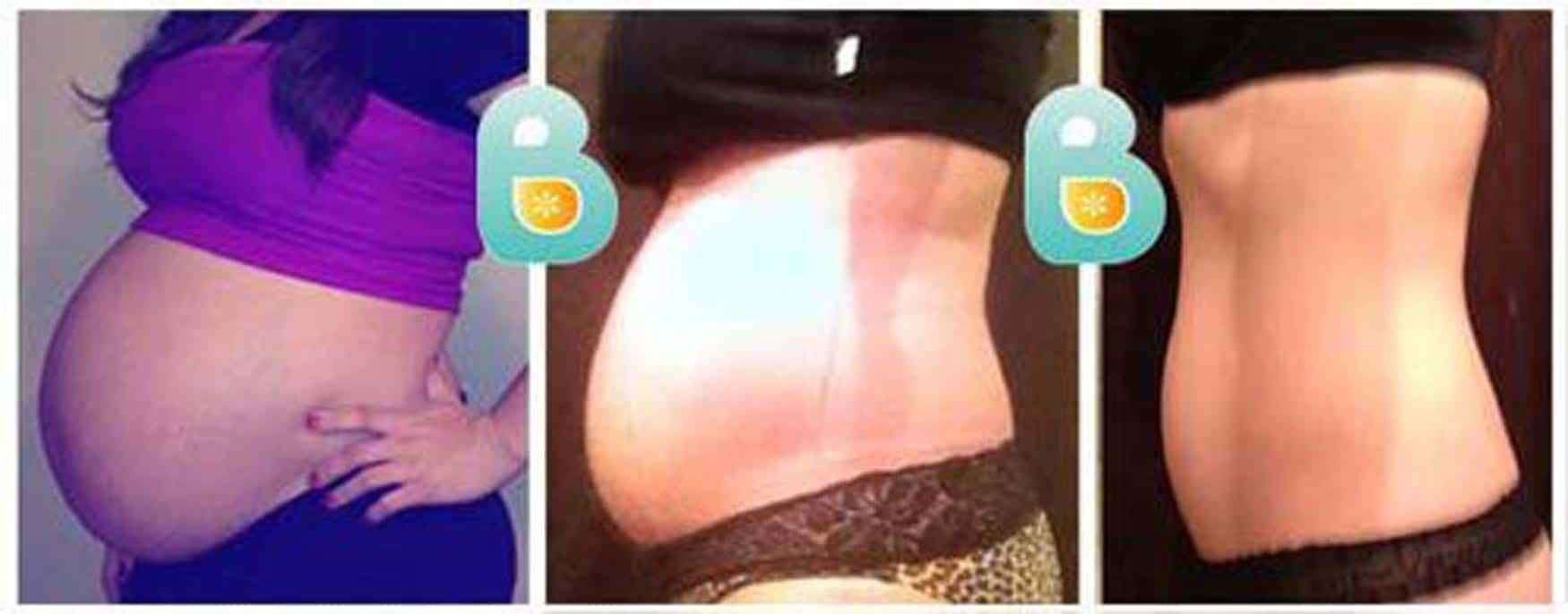 Second Time Mom Flattens her Postpartum Tummy in Three Weeks