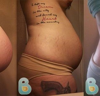 Baby Belly After Birth|Bellefit Postpartum Girdle and Corsets