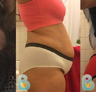 Heal My C-Section Faster | Bellefit Postpartum Girdle