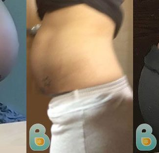 Support My Posture After Birth | Bellefit Postpartum Girdle and Corsets