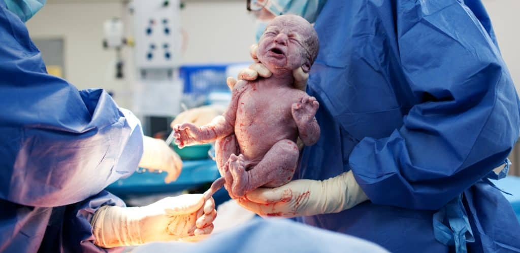 Baby being born via Caesarean Section