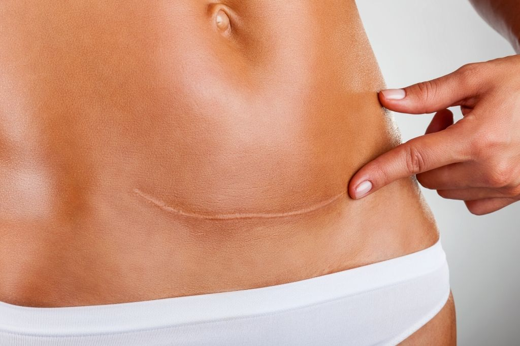 c-section scar reduction