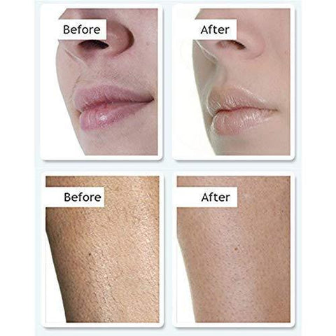 no!no! Pro Hair Removal System - Go weeks without shaving