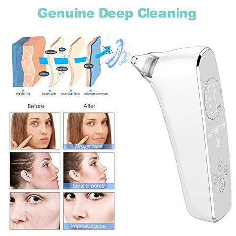 Professional 2020 Blackhead Remover Vacuum with 3 Modes, 6 Probes, 9 Suction Power for Skin Treatment - Beautyshop.ie