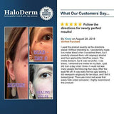HaloDerm Advanced Skin Tag Remover & Mole Corrector (Advanced) - Beautyshop.lv