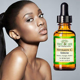 Tree of Life Vitamin C Serum for Face (30ML) - Beautyshop.ie