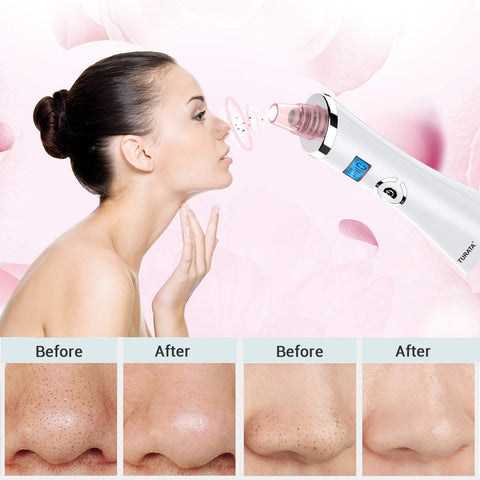 Pore Cleanser Vacuum Cleaner 5 Suction Modes, 5 Replaceable Heads Rechargeable Blackhead Removal Kit (Pink) - Beautyshop.ie