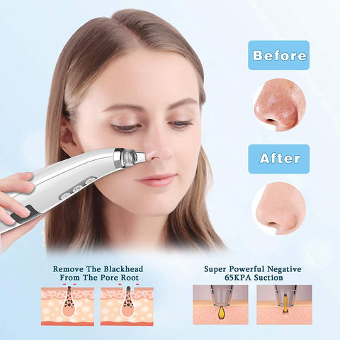Blackhead Remover Pore Vacuum Extractor - USB Rechargeable with 5 Adjustable Suction Power and 5 Replacement Probes - Beautyshop.ie