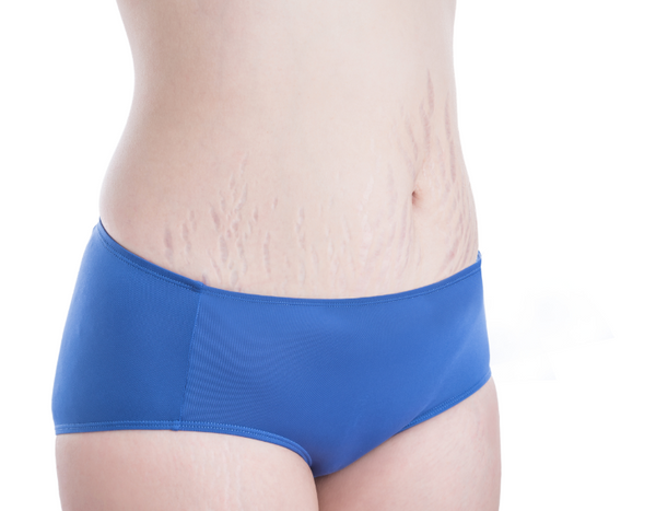 do+stretch+marks+appear+before+or+after+weight+loss