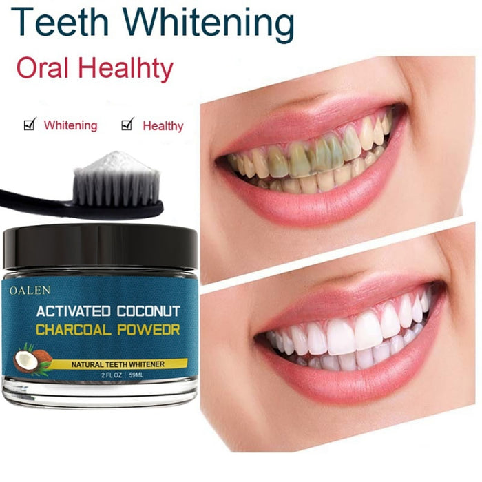 Charcoal teeth whitening - Shopelo.com