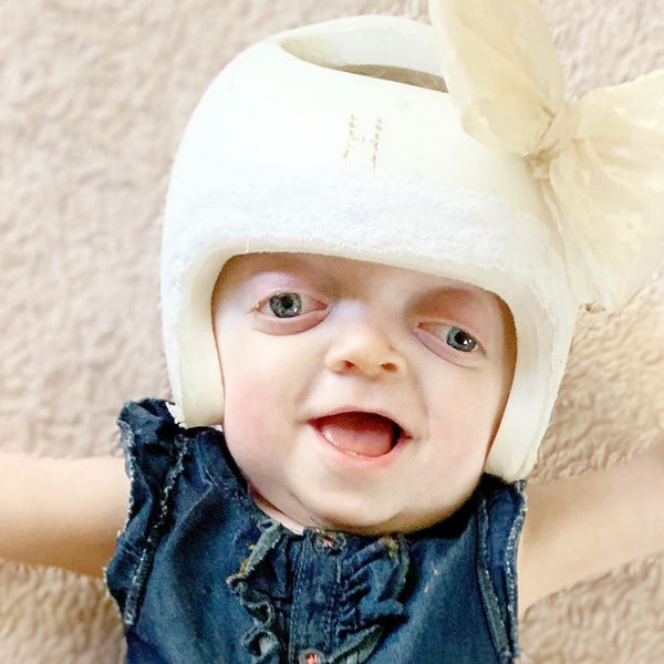 Halle Beams Happiness Despite Living With Pfeiffer Syndrome