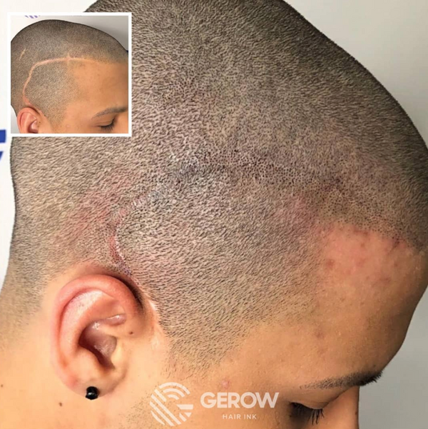 VIP Training – Jonathan Gerow & Erik Roberto Scalp Micropigmentation (2457822199868)