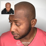 VIP Training – Jonathan Gerow & Erik Roberto Scalp Micropigmentation
