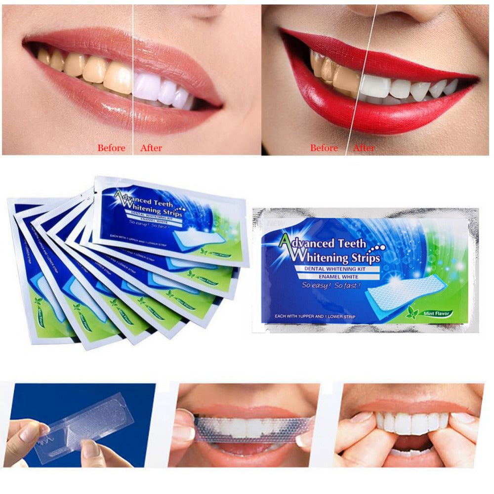 Buy Dental Teeth Whitening Strips by xshopz Best Sellers - Xshopz