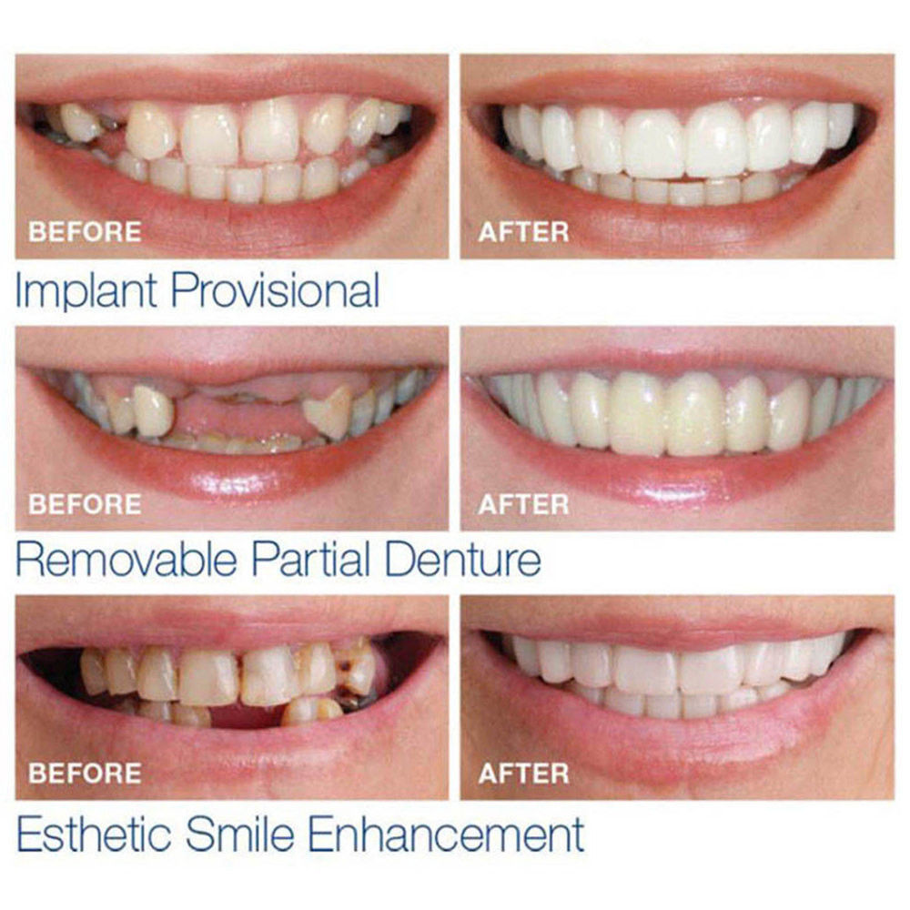 Xshopz Perfect Instant Smile Teeth Veneers Uppers & Lowers - Xshopz
