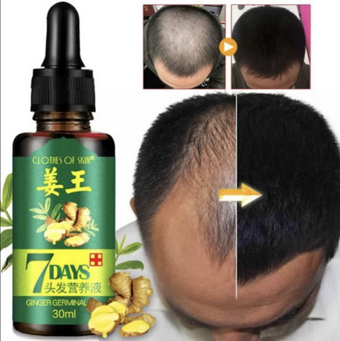 7 Days hair regrowth serum for Men