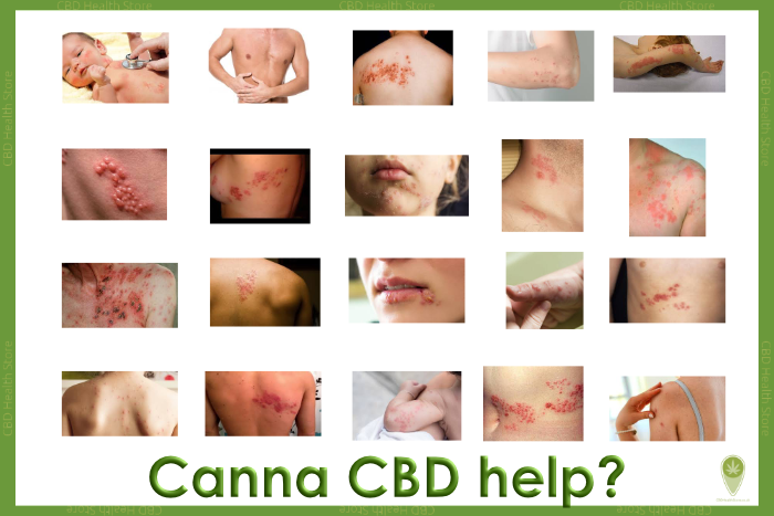 Shingles: A look at how CBD and cannabinoids may hold the answer in the treatment of skin care.