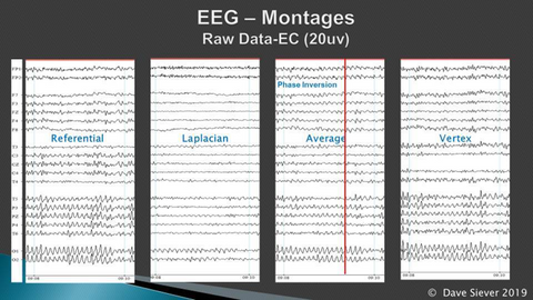 EEG Montages in Multi-channel Hyper-coherent Alpha