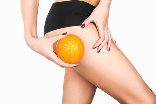 Cellulite: What Is It & What Causes It?