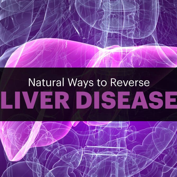 Natural Ways to Help Treat Liver Disease