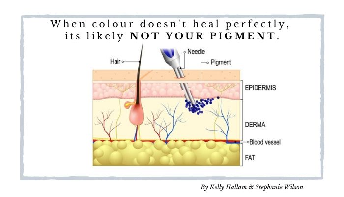 When colour doesn't heal perfectly, its likely NOT your pigment.