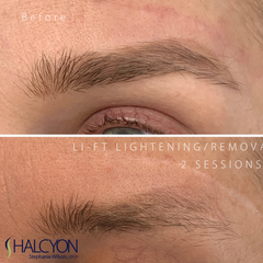 LI-FT Pigment Lightening Solution - Halcyon Cosmetic Store