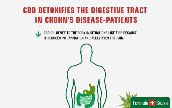 CBD detoxifies the digestive tract in Crohn`s disease patients