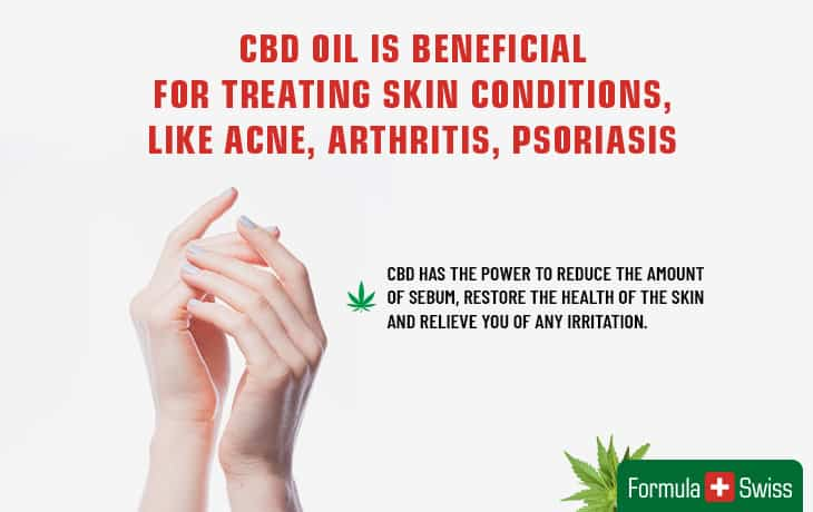 CBD oil is beneficial for skin conditions, like acne, arthritis, psoriasis