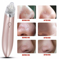 Ultrasonic Vibration Electric Blackhead Suction Extractor Remover Spot Clean Vacuum Pore Cleaner