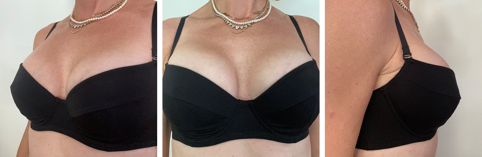 Molded Balconette Bra - 3/4, Front, and Side