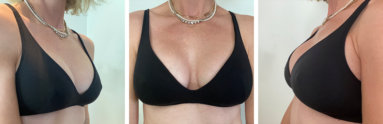Molded Plunge Soft Bra - 3/4, Front, Side