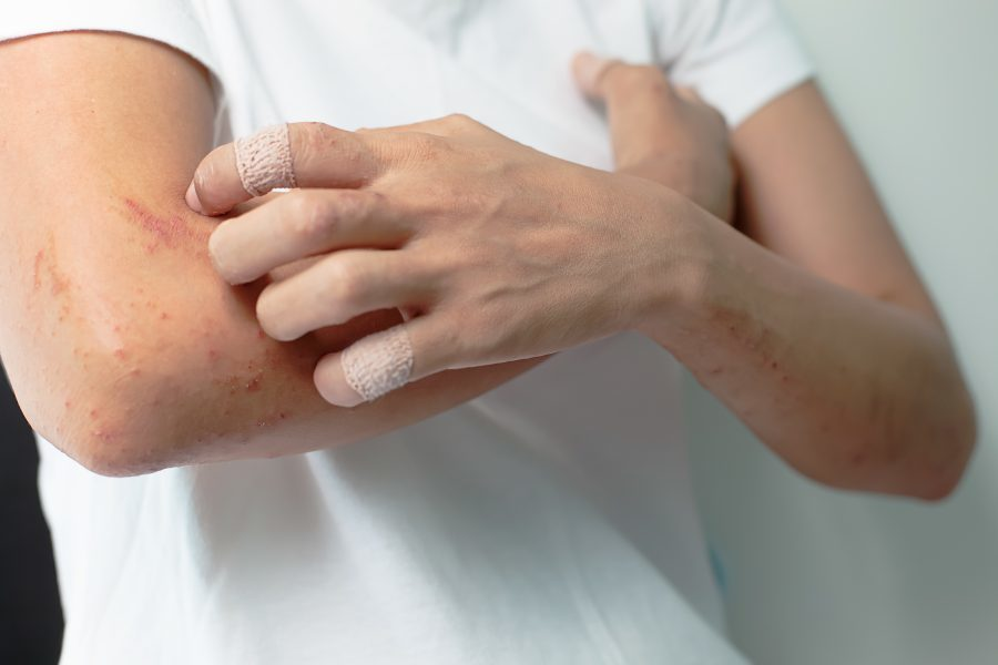 Adult eczema, aging eczema and triggers for adults