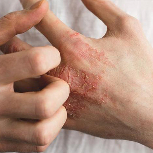 Eczema on the hands, and how to treat it!