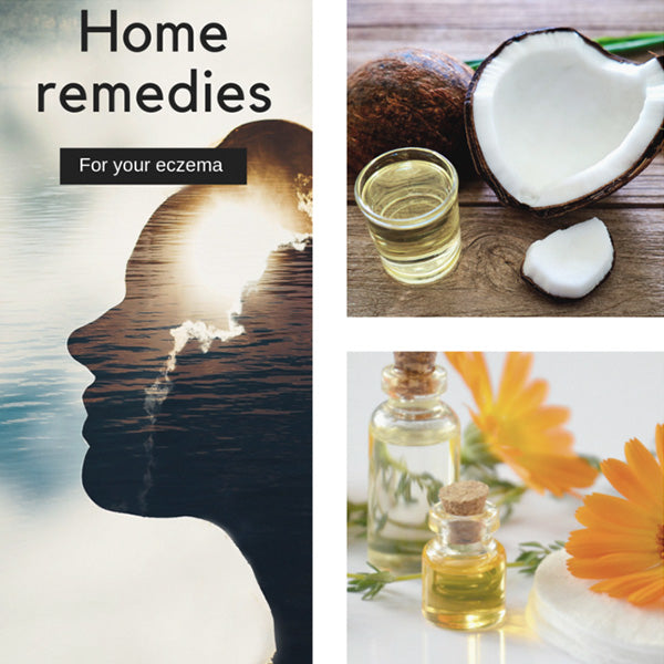 Natural Home Remedies to Help Soothe Eczema