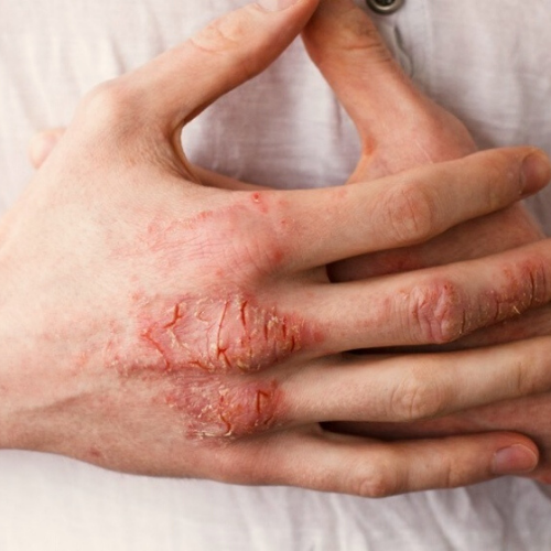 What could be causing your eczema and how to treat it with an eczema cream.