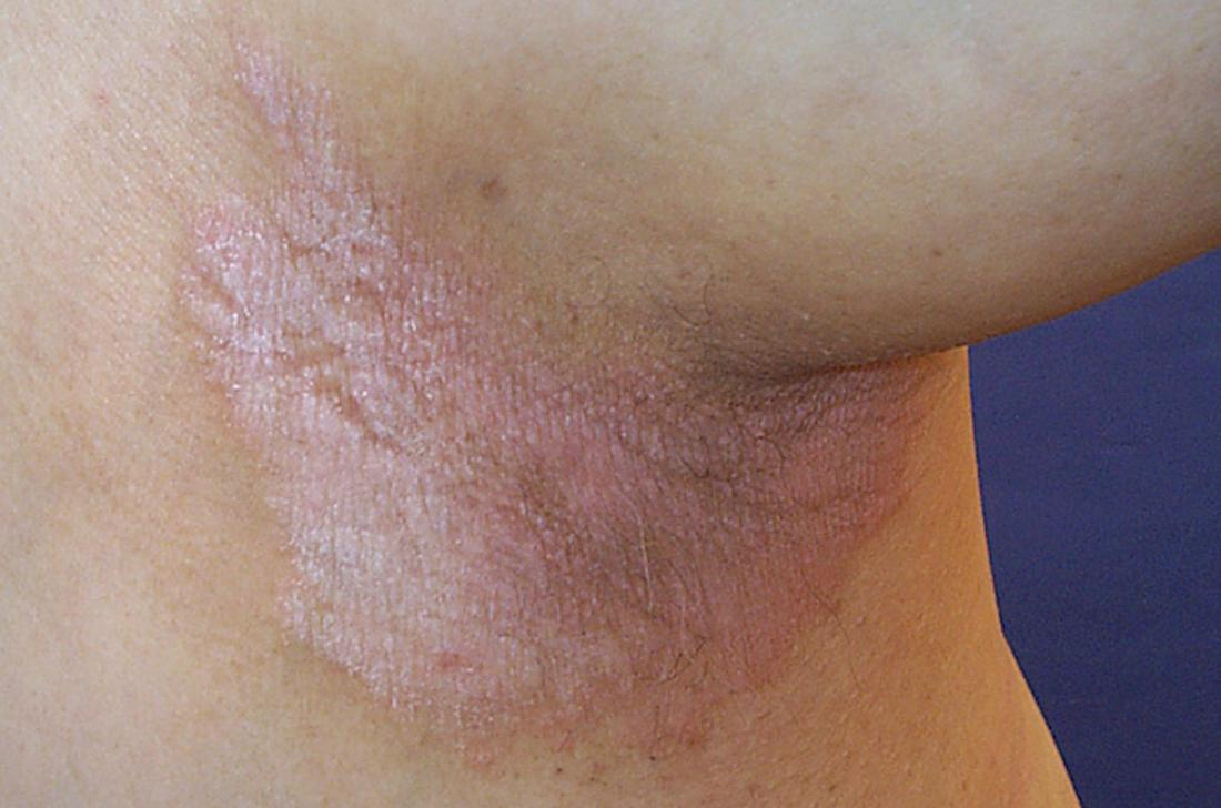 Hidden But Painful Skin Folds: Inverse Psoriasis