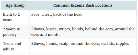 How does eczema affect aging and where eczema flare ups occur