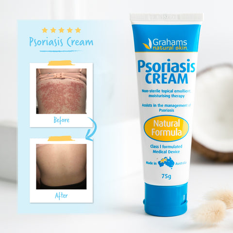Psoriasis cream that cured a woman from her psorasis